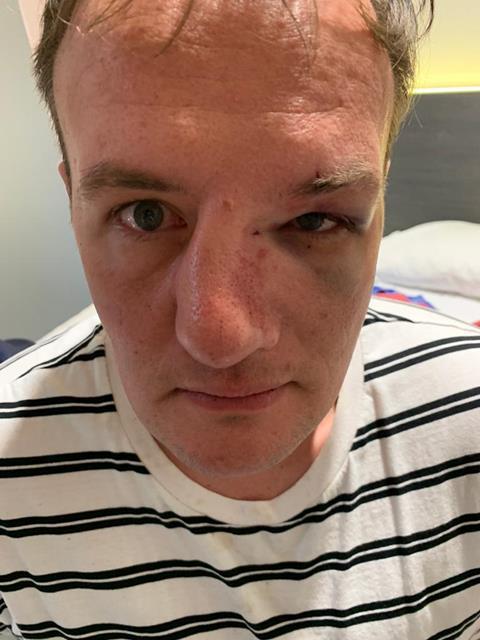 Michael broken nose